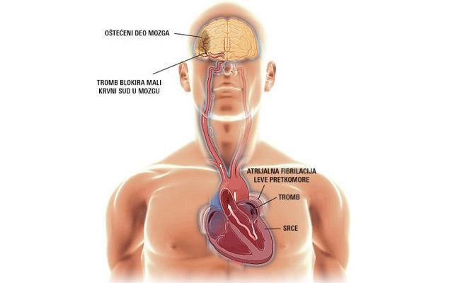 crtež koji pokazuje šta je atrijalna fibrilacija